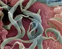 паразиты внутри человека видео